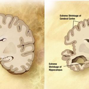 Prikaz normalnih možganov in možganov z Alzheimerjevo boleznijo