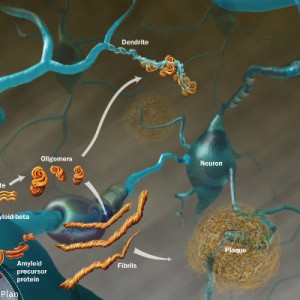 Kanabinoidi zmanjšujejo  tvorjenje amiloidnih plakov in nevrofibrilarnih pentelj