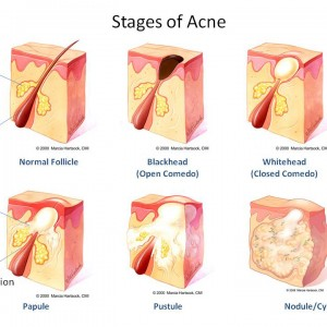 akne stadiji